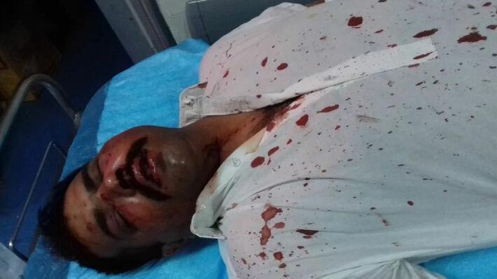 Εμφανή τα σημάδια της επίθεσης «αγνώστων» σε βάρος των Πακιστανών